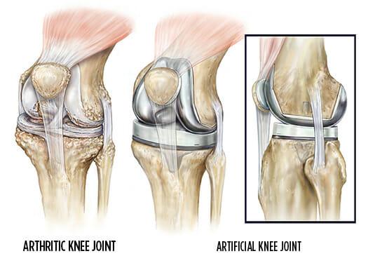 Αρθροπλαστική γόνατος MAKO