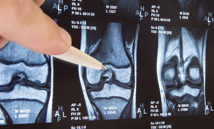 Βλάβη αρθρικού χόνδρου - ακτινογραφεία