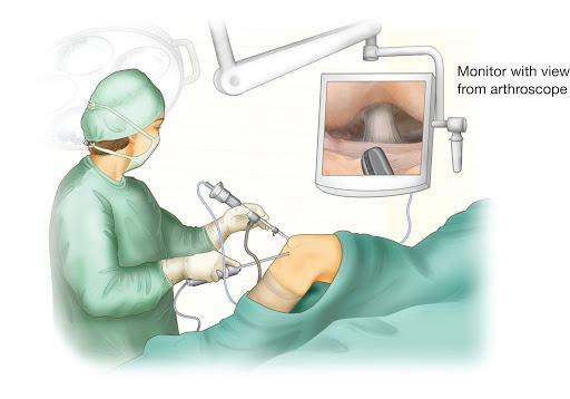 knee erthroscopy